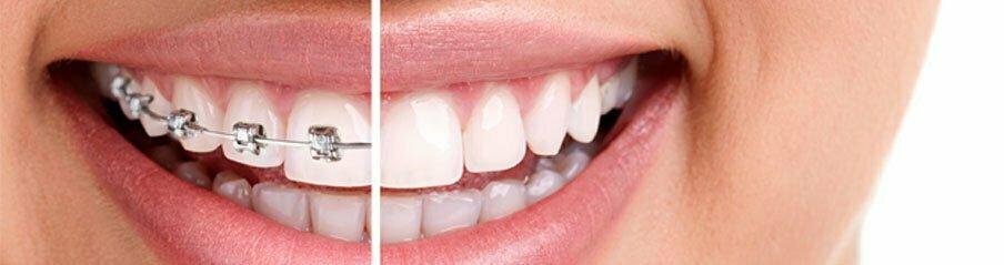 Affordable Phoenix Orthodontics