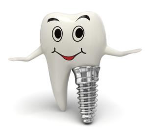 Dental Implants in Arizona
