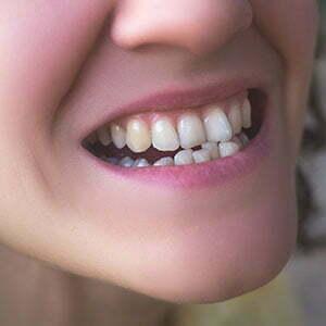 inexpensive braces