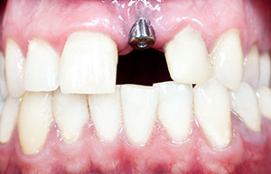 dental implants phoenix dentist phoenix