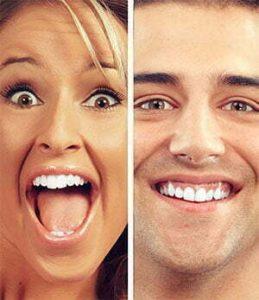 smile faces braces