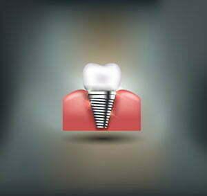 implant dentist phoenix