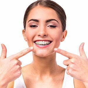 pricing for braces
